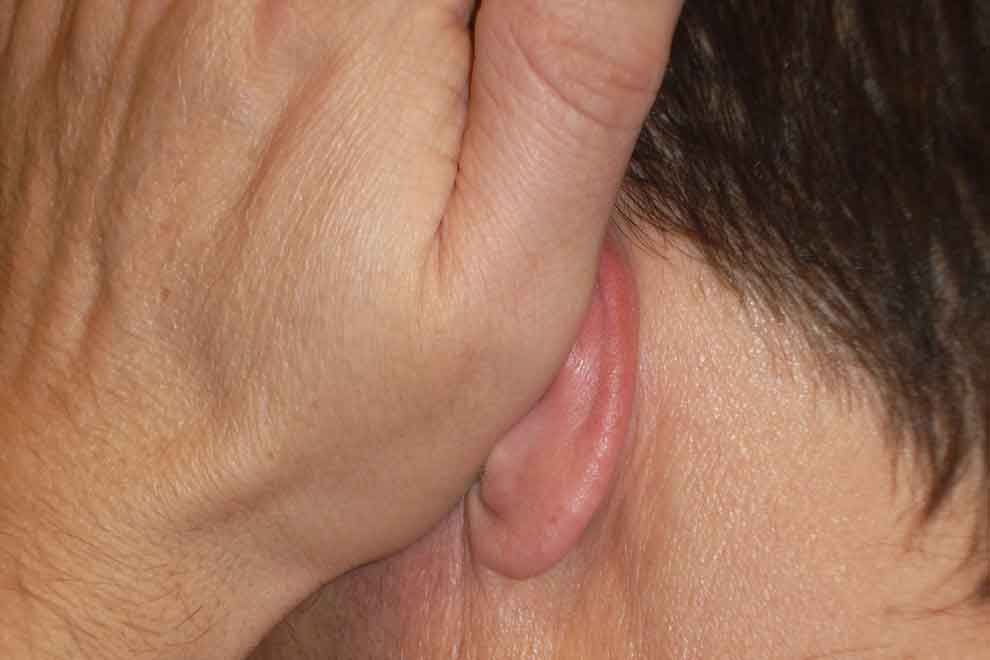 Левое ухо 3