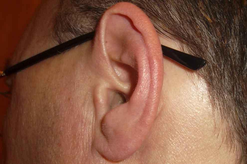 Уши горячие почему анализ крови нельзя общий клинический
