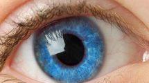 Глаз 1