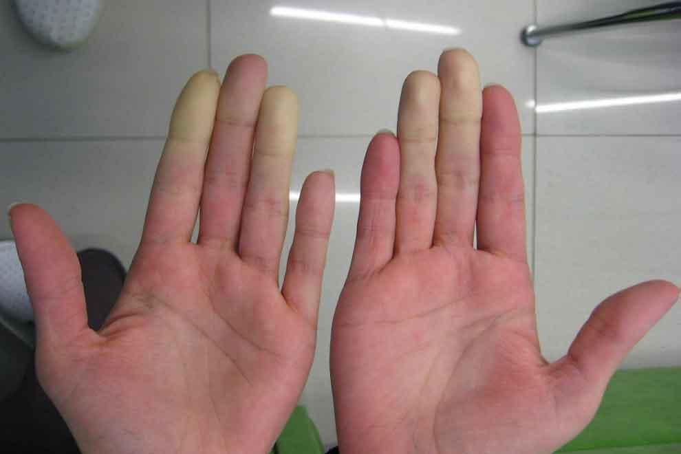 Болезнь Рейно: симптомы и лечение народными средствами