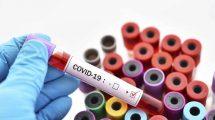 КОВИД 19 риски безопасность труда специалистов со средним медицинским образованием тесты с ответами