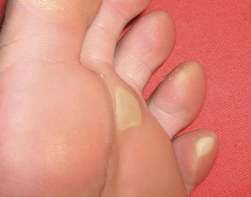 Сухие мозоли на пальце на ноге и на стопе