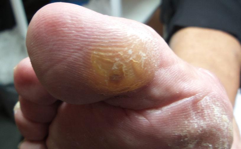 Мозоль сухая - наросты - со стержнем на большом пальце на правой ноге