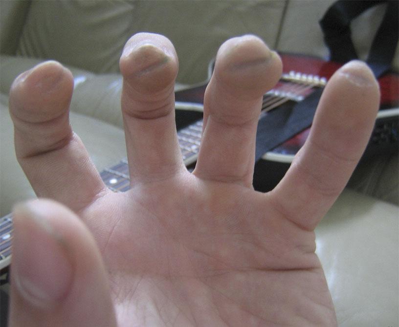 Сухие мозоли от струн гитары на кончиках пальцев левой руки