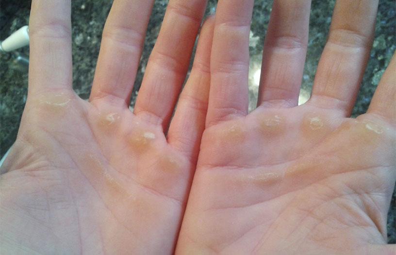 Сухие мозоли на ладонях на руках