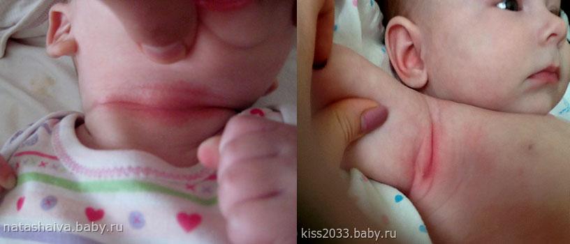 Опрелости на шее и подмышками у новорожденного мальчика