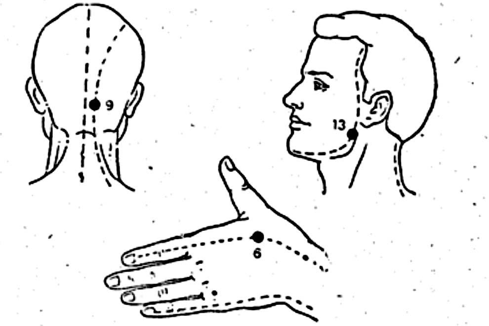 Точки на теле для устранения сильной боли в зубах
