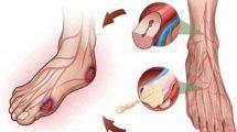 Трофическая язва на ноге: лечение: как лечить язву в домашних условиях