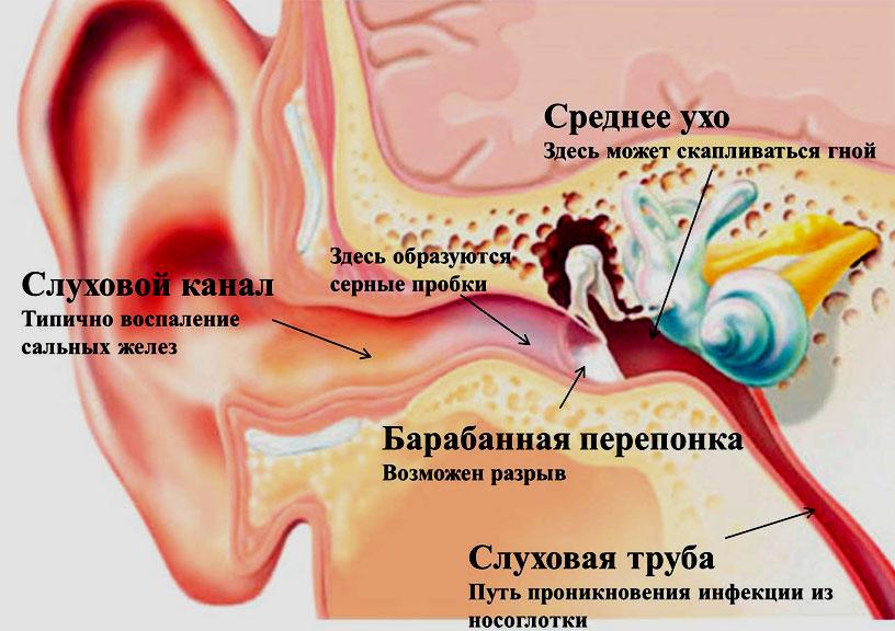 Сильно болит ухо внутри с одной стороны, отдает: чем лечить в домашних условиях ухо и горло