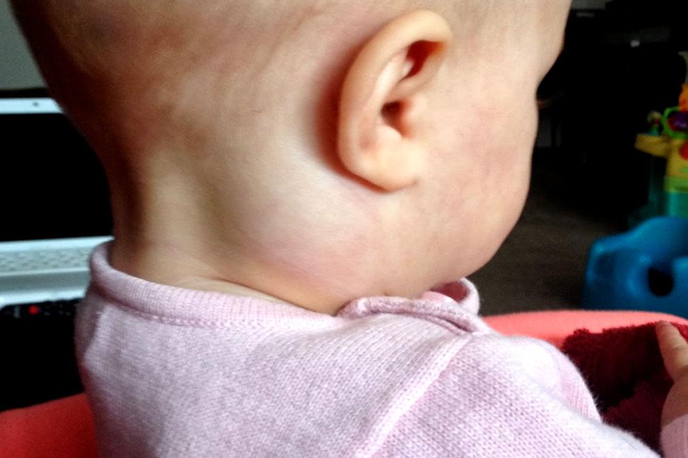 Воспаление лимфоузла за ухом у ребенка