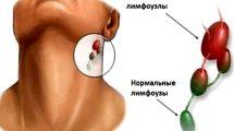 Воспаление лимфоузлов под челюстью: лечение, причины, как лечить на шее