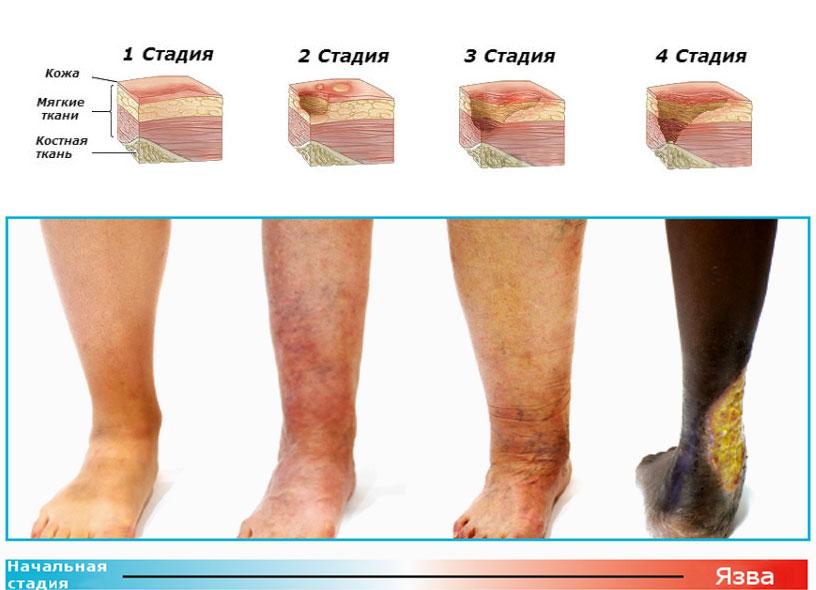 Стадии развития трофических язв на ногах: начальная стадия - зрелая