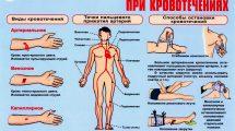 Кровотечение при ранении вены, артерии: как остановить в домашних условиях