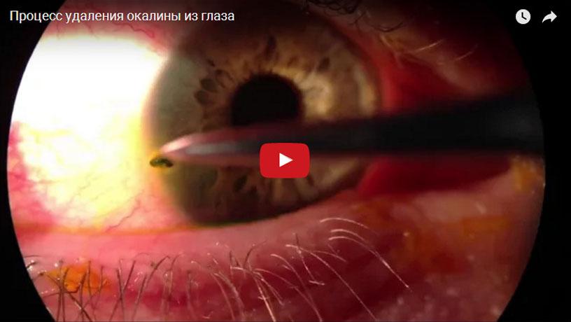 Окалина или стружка железная в глазу: что делать, как вытащить