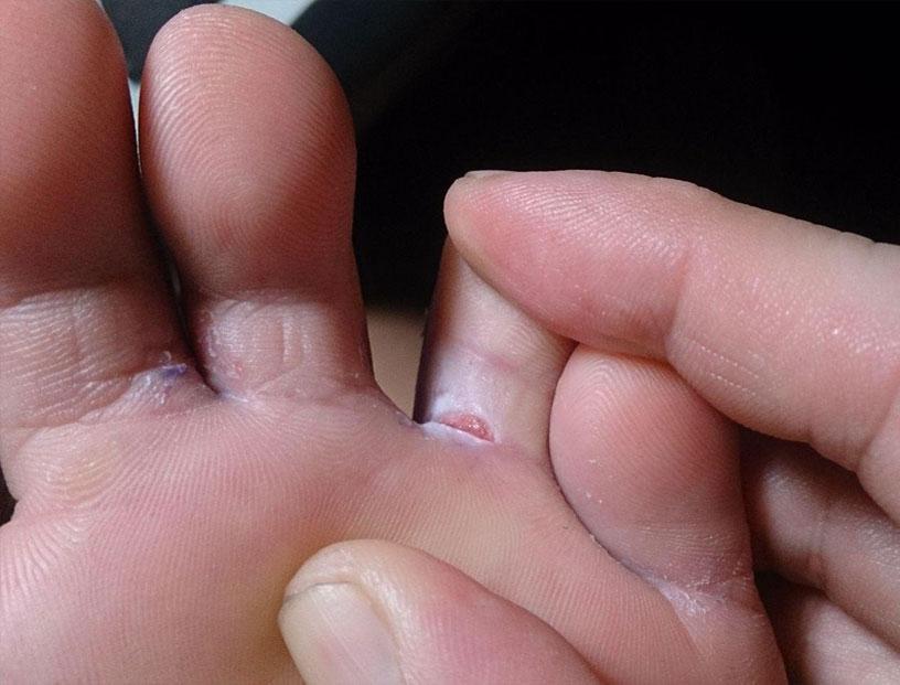 Фото: опрелости и трещины между пальцами у взрослого человека - женщины