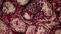 Орхит: воспаление яичка у мужчин: симптомы и лечение