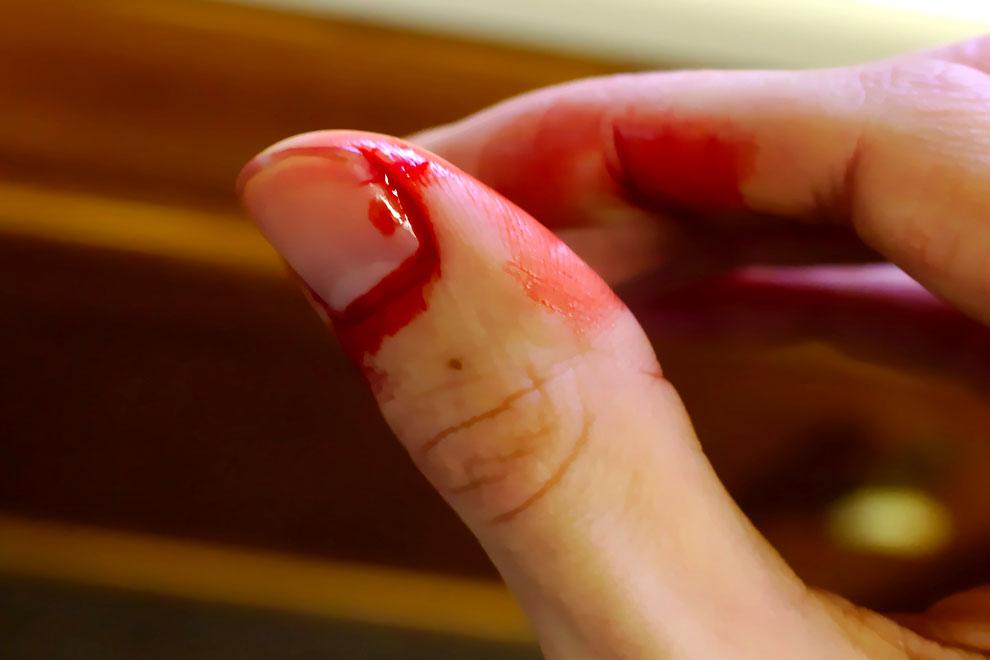 Палец порезал сильно на руке, фото, что делать, как остановить кровь