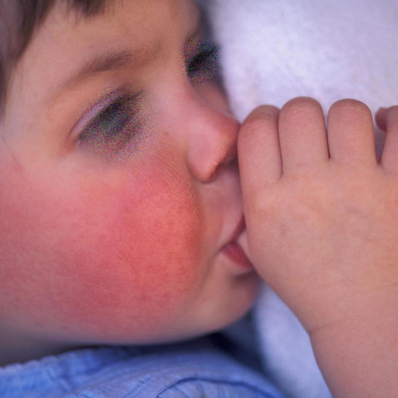 Сыпь - один из симптомов скарлатины у детей