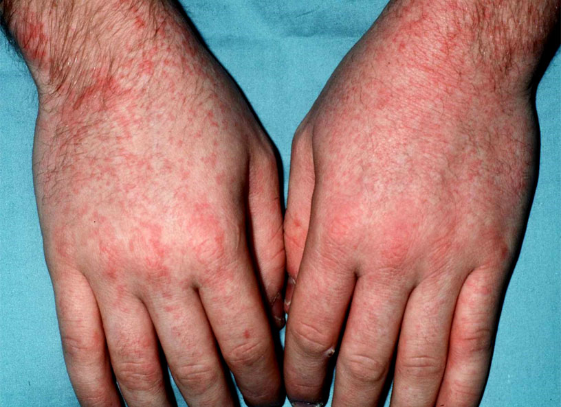 Скарлатина у взрослого человека: симптом - высыпания на коже на руках