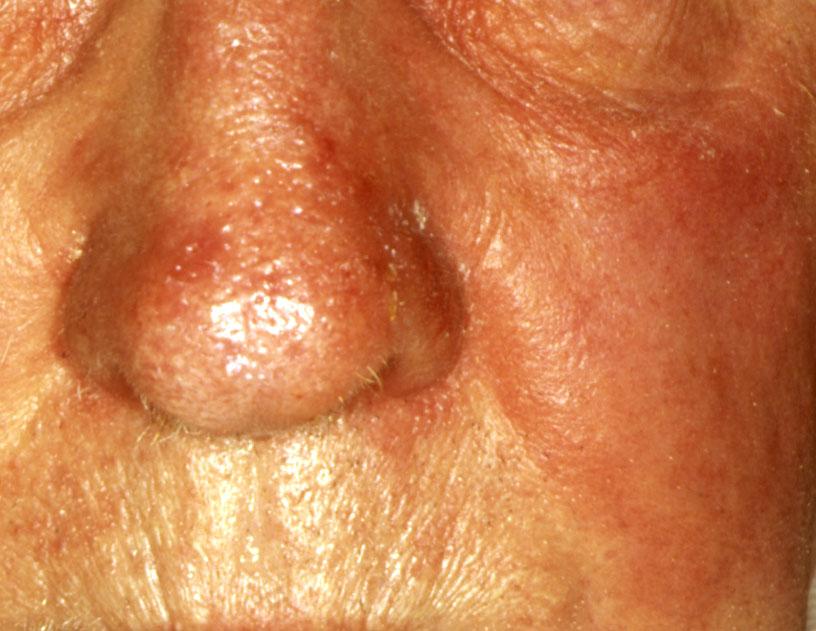 Фото рожистого воспаления на коже на лице