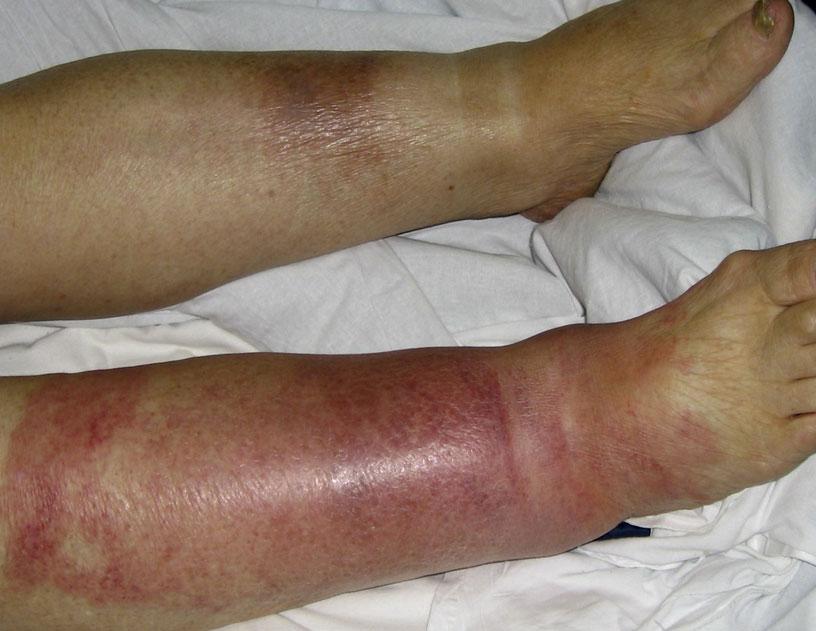Фото: рожистое воспаление на ногах