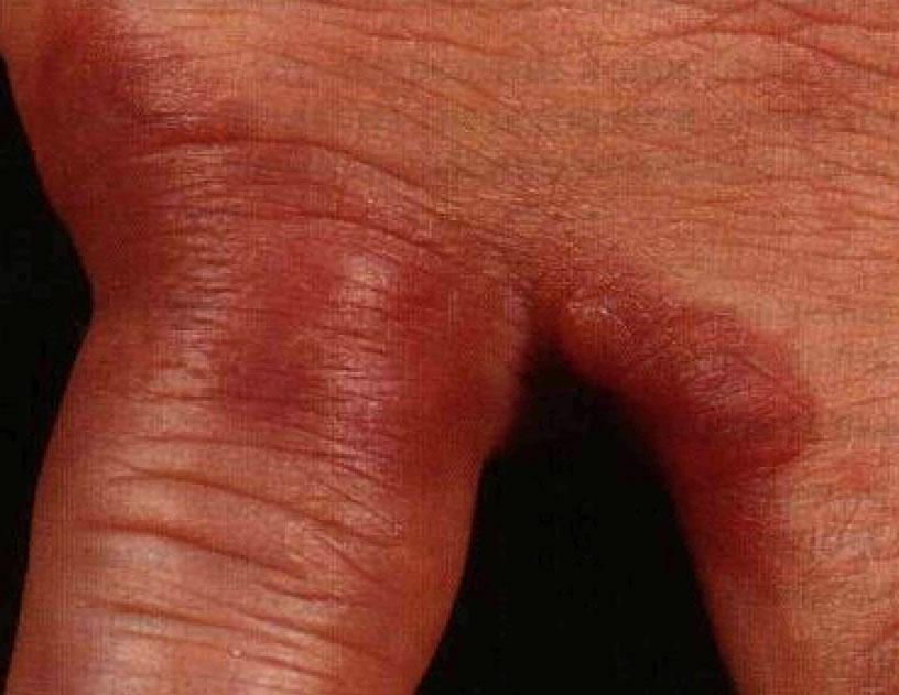 Фото: рожистое воспаление кожи на руках на пальцах