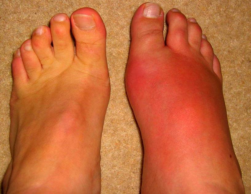 Фото: симптомы и лечение рожистого воспаления ноги, лица в домашних условиях