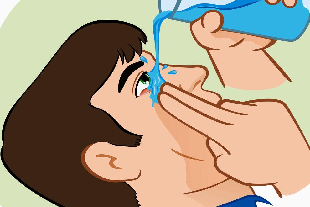 Гноится глаз у взрослого и закисает, что делать, чем лечить, почему гноятся глаза